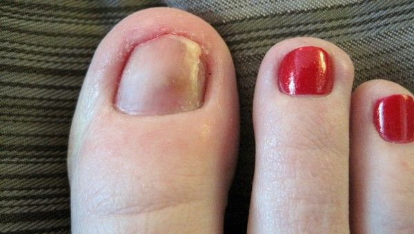 how to take care of a bruised toenail