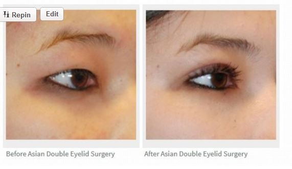 Come visit our Asian Plastic Surgery Review Testimonial Page for Dr. Philip Young who Practices in Bellevue, Washington