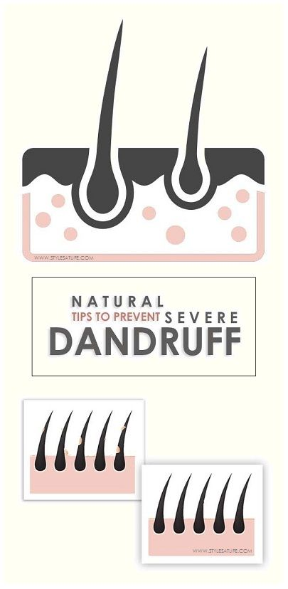 How to Cure Severe Dandruff?