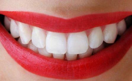 Clareamento dental caseiro: Não faça antes de ler isso