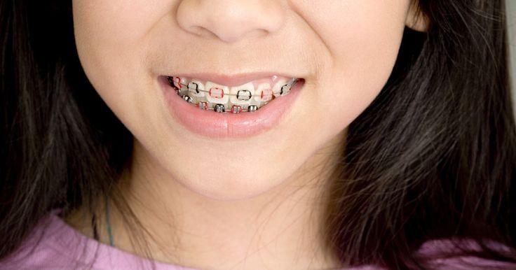 Cómo blanquear los dientes luego de utilizar aparatos de ortodoncia o frenos. Después de años de utilizar aparatos o frenillos, existe una expectativa muy grande a medida que llega el momento de removerlos. Desafortunadamente, una vez que sucede ésto, puede suceder que el área debajo de los frenillos metálicos esté más blanca que el esmalte de los alrededores. Para blanquear tus dientes hay varias opciones que puedes ...