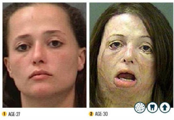 """The """"Faces of Meth"""" - before and after police mugshots of drug users that depict the effects of methamphetamine on the human body -…"""