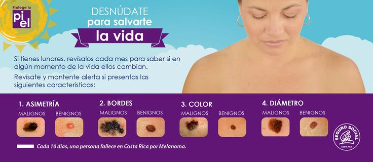 Costa Rica launches skin cancer prevention campaign Health matters - http://www.freshcancernews.com/costa-rica-launches-skin-cancer-prevention-campaign-health-matters/