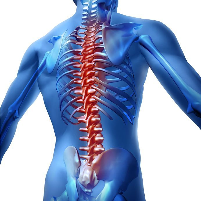 A loss of normal lumbar (low back) lordosis (spinal curvature) or actual kyphosis in the lumbar spine may produce a symptom called flatback syndrome.