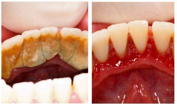 Стоматолог даже знать не будет!