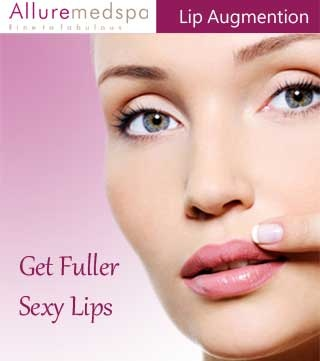 Lip Augmentation (Lip Implants) Surgery Procedure, which can reduce fine lines and wrinkles around your lips and improve the appearance of your lips through the use of injections or implants by Expertise Dr. Milan Doshi at affordable cost in Alluremedspa, Andheri, Mumbai, India.