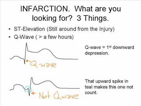 The ST Elevation Song!  (What to Look for on an EKG)