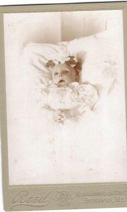 Post mortem of emaciated infant.