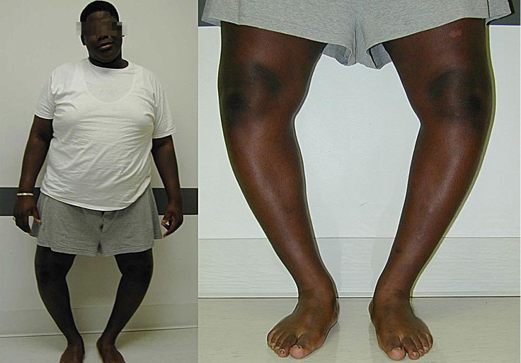 Orthopedic complication of obesity - Blount disease. Marked obesity and bilateral genu varum is present.