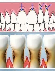 Grow Back Your Receding Gums With These Natural Remedies!