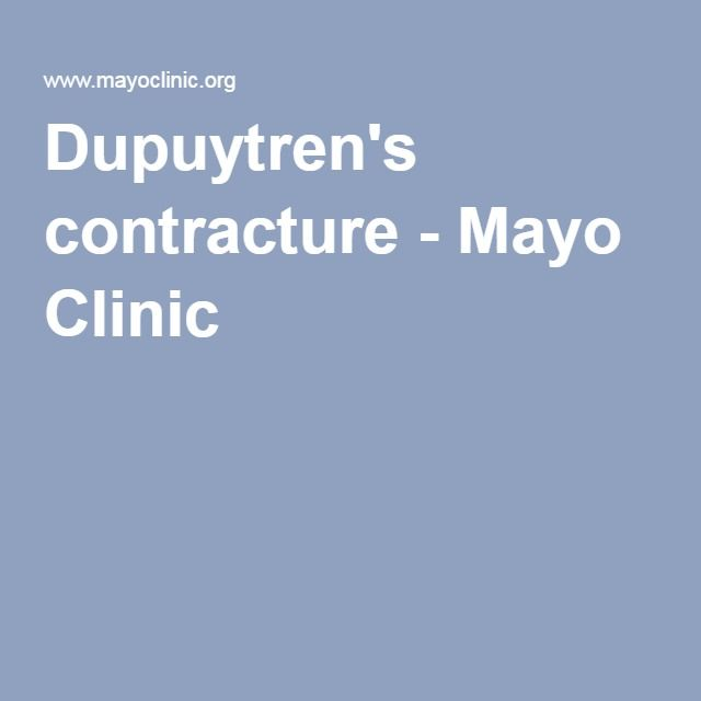 Dupuytren's contracture - Mayo Clinic