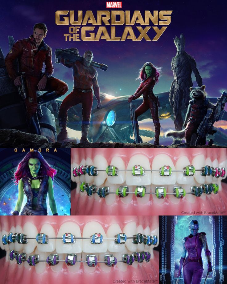 #Marvel mondays #guardiansofthegalaxy #Gamora #Nebula #Thanos #ZoeSaldana #KarenGillan #orthodontics #orthodontist #braces #ортодонт #ортодонтия #brackets  #ortodoncia #ortodontia #ortodontista #ortodoncista #marvelcomics #marveluniverse #colour #bracescolors #cosplay