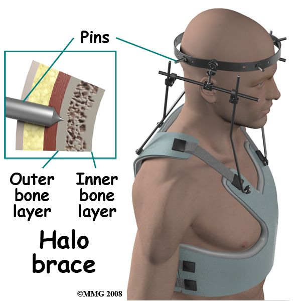 halo vest Compared with conventional orthoses, the halo vest or halo body jacket offers  more rigid immobilization of the cervical spine, the ability to more precisely.