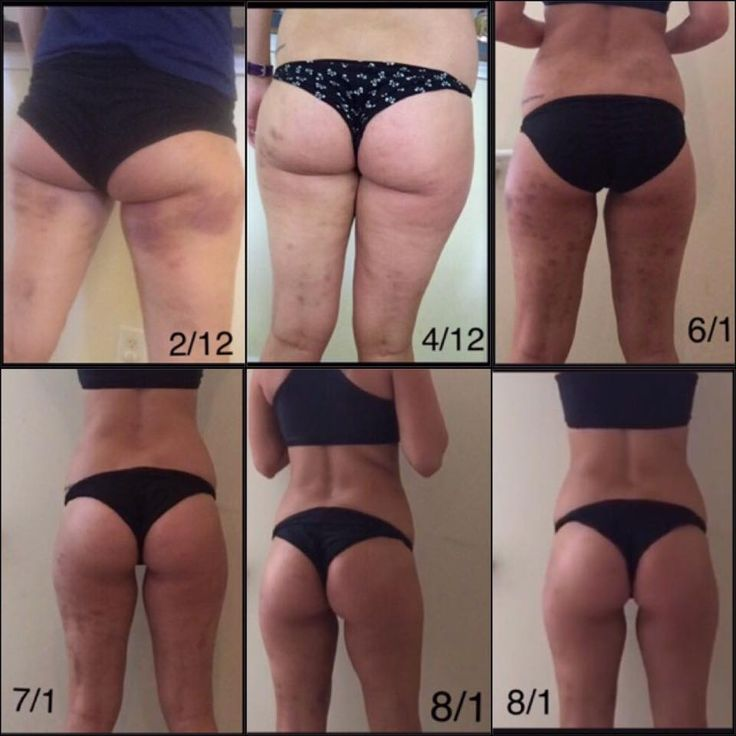 """OMG, her journey is AMAZING! Dimples and dents are just FASCIAL DISTORTIONS. """"Cellulite"""" can be fixed!!! #Cellulite is a connective tissue problem! The FasciaBlaster® is a HANDHELD TOOL that is like dry brushing, but for the inside layers and much more aggressive and 100% effective no matter how big or small you are! Everyone is addressing skin and #fat, when cellulite is a FASCIA problem! Learn about the 4 types of Fascia here: ashleyblacksystems.com/4-types-of-fascia/"""