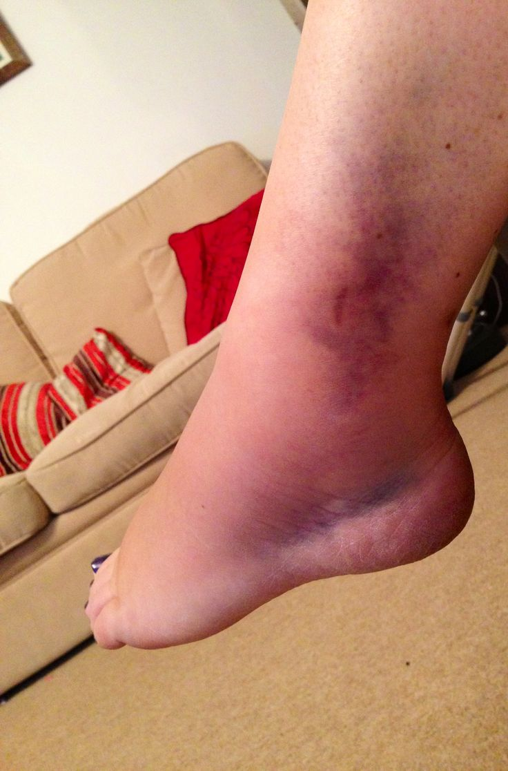 how to fix a sprained ankle in a day