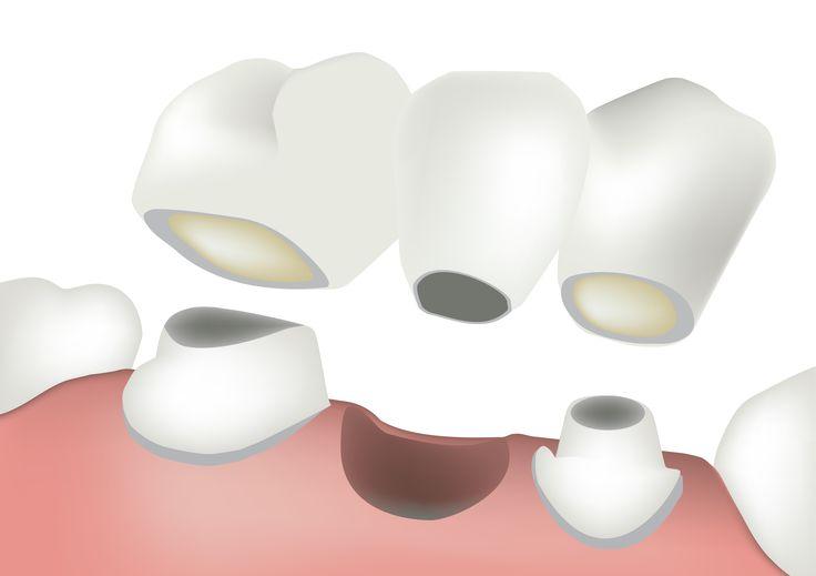 Dental Bridges: Cost, Procedure and Hospitals | Medigence