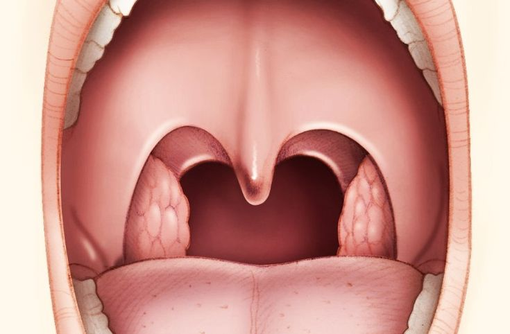 L'intervento di termoablazione rimuove l'eccesso di tessuto presente nei turbinati nasali, alla base della lingua, ma anche nel palato molle.