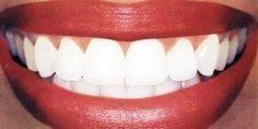 Un amigo dentista me enseñó a elimina el sarro, la gingivitis y BLANQUEAR MIS DIENTES en minutos con esta receta casera. | Salud con Remedios