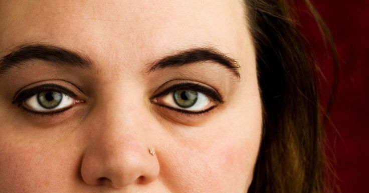 Nose piercing has possibly been in practice since there have been noses and sharp things to pierce them with. Piercing your nose generally involves denser flesh than ear piercing, and the nose contains substantial bacteria, so infections are common. People typically touch new nose piercings often, which can introduce bacteria into the piercing and...