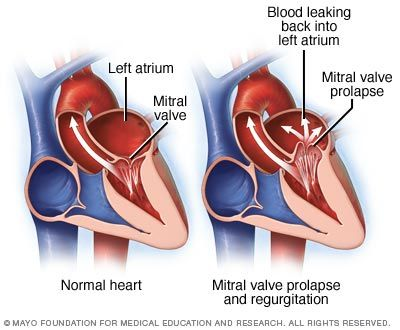 mitral valve prolapse overview