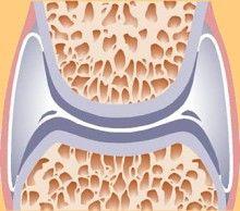Az egészségek porcok rugalmasak, magas víztartalmúak, de az évek múlásával fokozatosan csökken a kollagén-és víztartalma ami okozza a későbbi mozgásszervi panaszokat.
