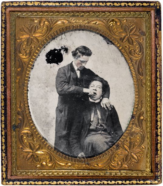 The Burns Archive: Dental Extraction, Ambrotype, 1857.  This ambrotype is typical of extraction images of the time.