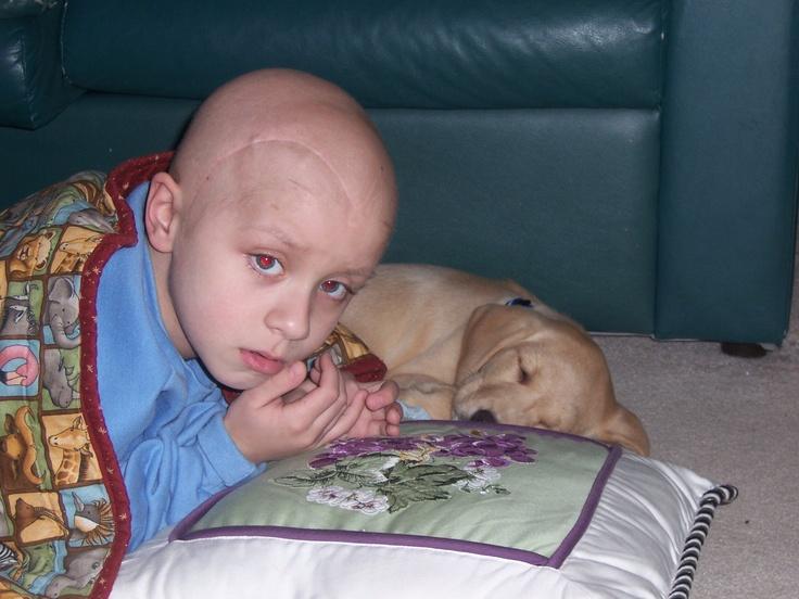 Image result for brain tumor kids