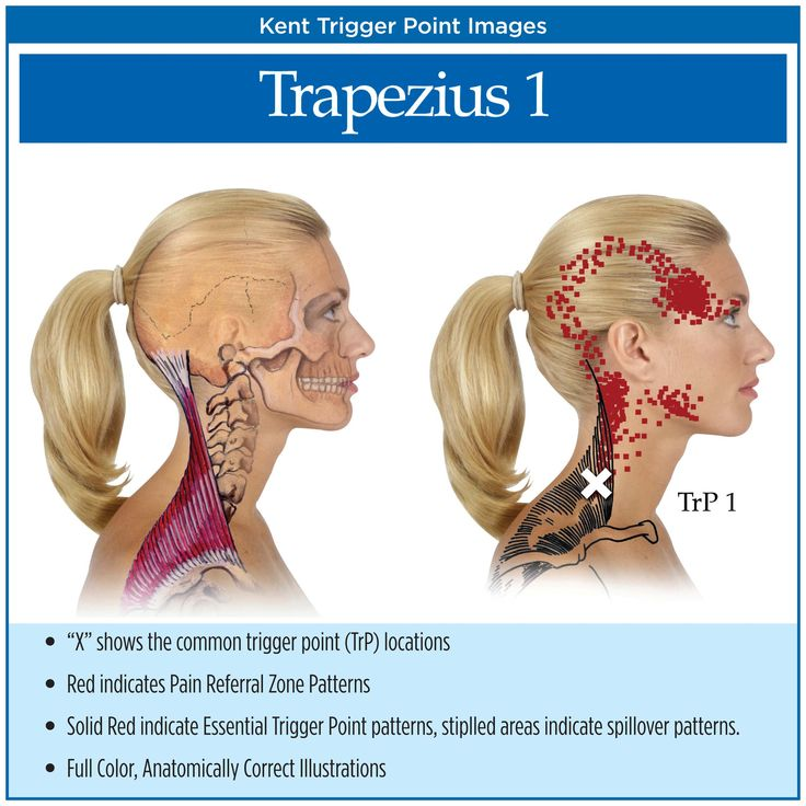 Symptoms of Myofascial Pain | Myofascial Trigger Points Chart.....causes facial pain and can cause deep ear pain and headaches.