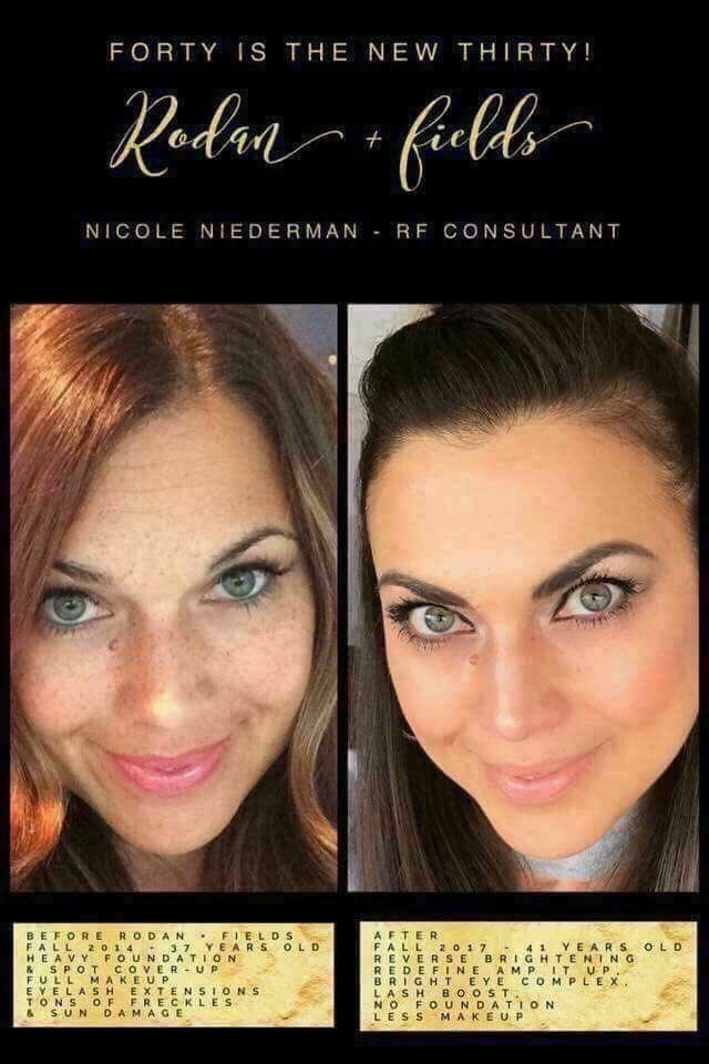 Check out Nicole's STUNNING results! . 💎Skin discoloration ...