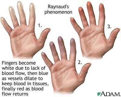 Raynaud's phenomenon.From someone that suffers from this process, it is a very painful, debilitating disease that affects me every day of my life.