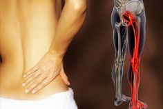 La ciática es un pinzamiento del nervio ciático que se produce a la altura de las vértebras lumbares, suele provocar un dolor muy intenso que puede manifestarse en cualquier punto del recorrido del...
