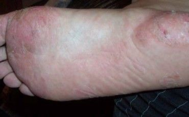 21 best Eczema images on Pinterest | Health, Health care ...