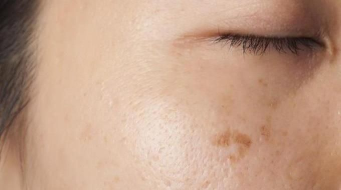Vous avez des taches brunes sur le visage ou les mains ? Qu'elles apparaissent à cause du soleil ou l'âge, elles ne sont jamais les bienvenues ! Et on aimerait bien les faire disparaître rap...