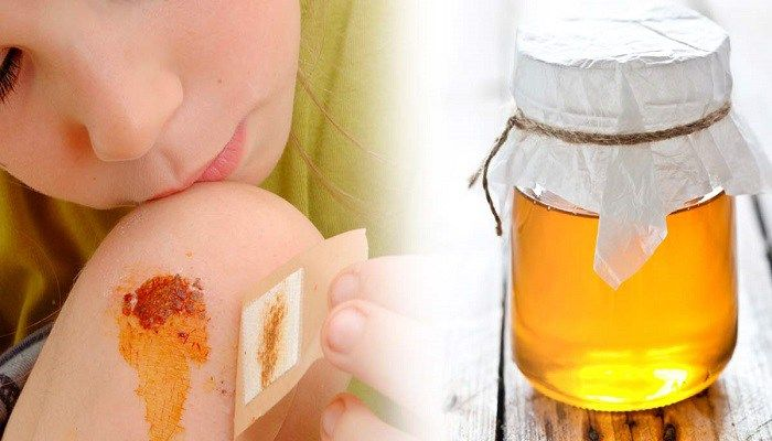 Use honey to heal burns, cuts, wounds and bed sores!