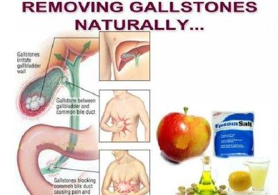 With This Chinese Remedy, You Can Throw Out Gallstones From Gallbladder!