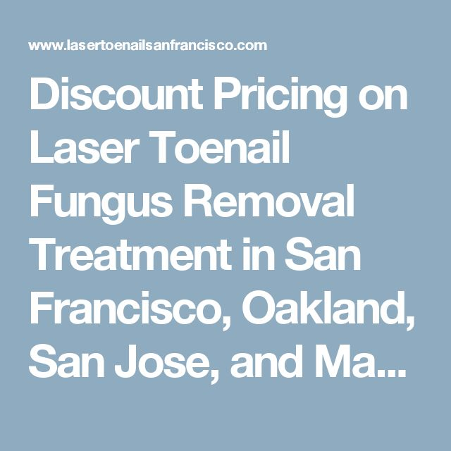Discount Pricing on Laser Toenail Fungus Removal Treatment in San Francisco, Oakland, San Jose, and Marin - Laser Toenail House CallsSan Francisco Bay Area