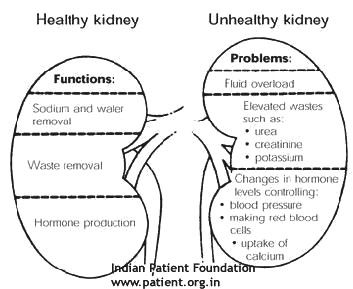 Kidney - Healthly and Unhealthly
