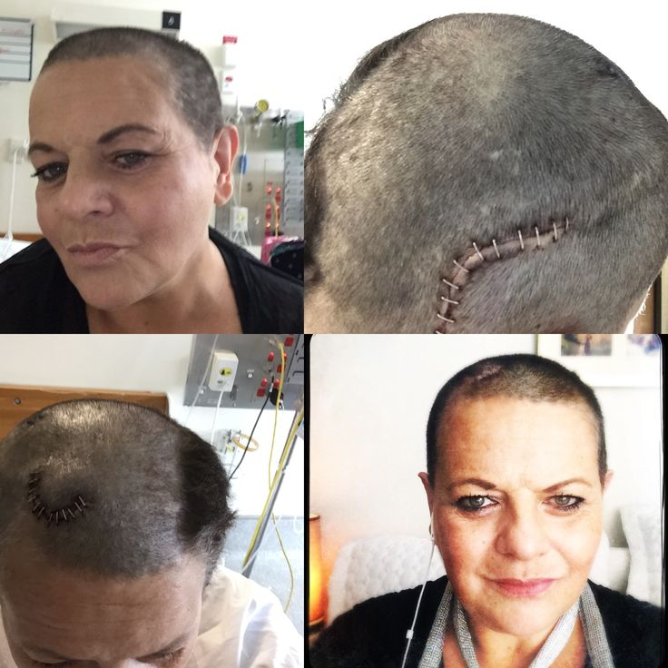 Hair shaved for brain surgery 2