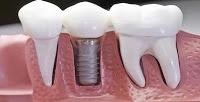 KESEHATAN,korantangsel.com- Memiliki masalah dengan  gigi yang hilang tentu tidak hanya dapat menggangu penampilan namun dapat mengganggu fungsi bicara dan juga estetika. Kini masalah tersebut dapat diatasi dengan beberapa cara