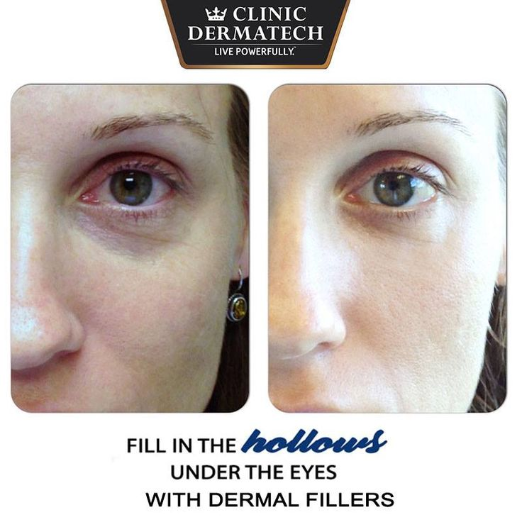 Fill in the hollows under the eyes with Dermal Fillers