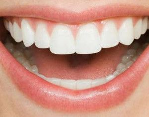 Teeth Whitening Homemade Recipe