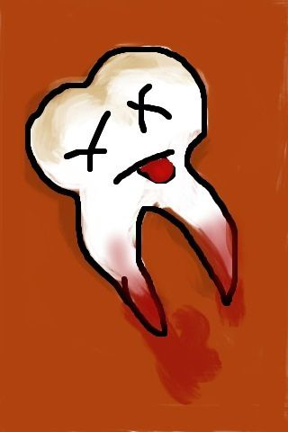 save-a-damaged-tooth-with-no-root-canal Teeth can and do heal! Be aware of your actual health options!