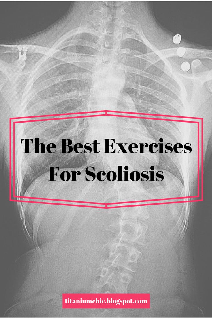 Titanium Chic: The Best Exercises For Scoliosis