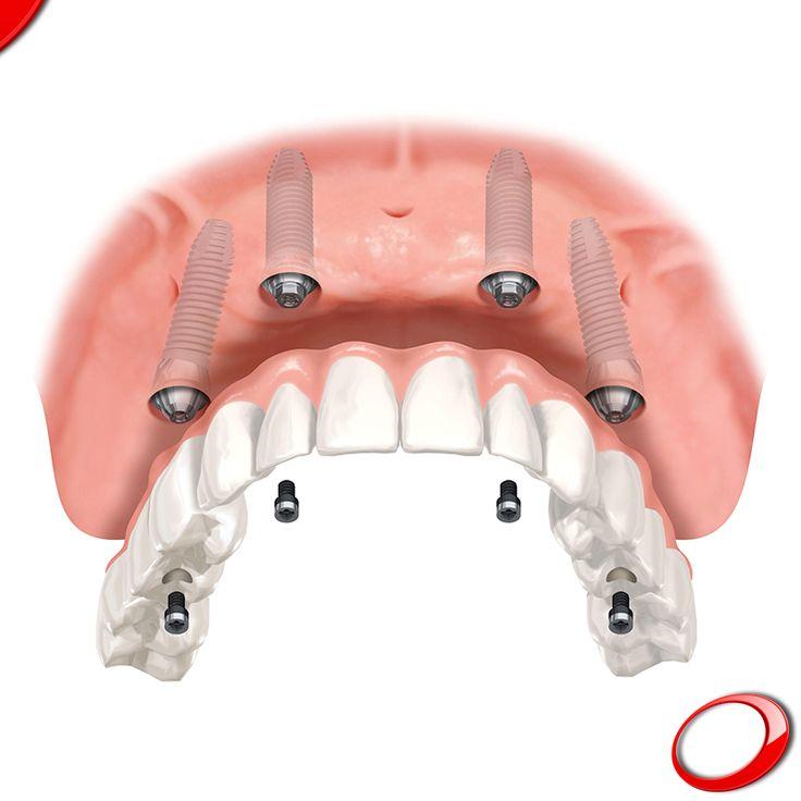 All on 4, ¡la técnica que permite una nueva sonrisa con sólo 4 implantes! ........................................................................................ Concierta YA tu consulta SIN NINGÚN COMPROMISO: > http://www.pnid.es/landing.html http://www.pnid.es/ #dentista#implantes#sonrisa#clínica#salud#saludable #calidaddevida