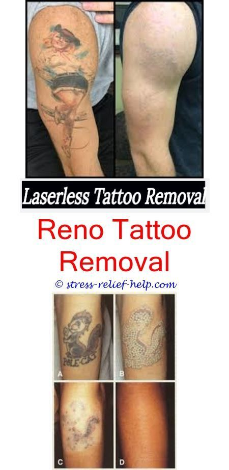 Tattoo Removal Near Me Can Hickeys Remove Tattoos How To Remove A
