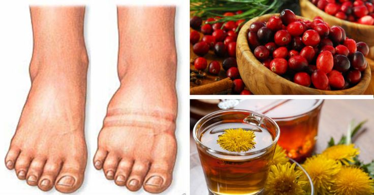 how to help inflammation on ankles