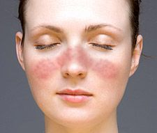 The milar rash that some with lupus get, also know as the butterfly rash.