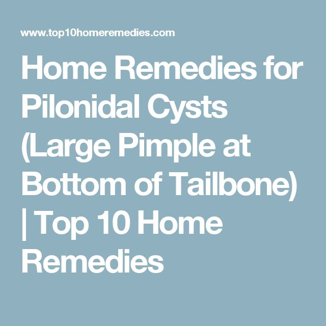 Home Remedies for Pilonidal Cysts (Large Pimple at Bottom of Tailbone)   Top 10 Home Remedies