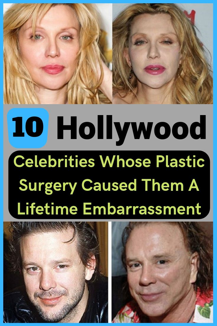 Check out the before and after plastic surgery pictures of these 10 Hollywood celebrities who regret their decision stil.