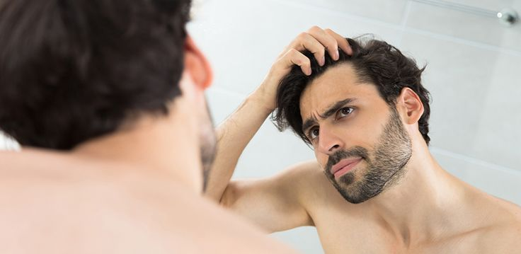 What is male pattern baldness and can it be treated?